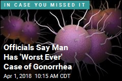 Officials Say Man Has 'Worst Ever' Case of Gonorrhea