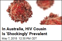 HIV Cousin Hits 40% of Adults in Some Parts of Australia