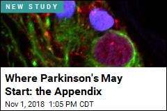 Appendix Removal Tied to Lower Parkinson's Risk