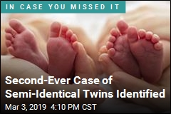 Second-Ever Case of Semi-Identical Twins Identified