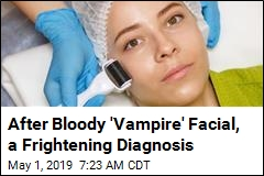 After Bloody 'Vampire' Facial, a Frightening Diagnosis