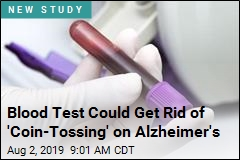 Blood Test Could Get Rid of 'Coin-Tossing' on Alzheimer's