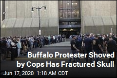 Buffalo Protester Shoved by Cops Has Fractured Skull