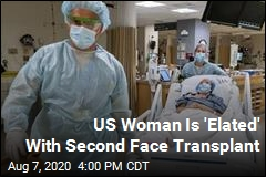 US Woman Is 'Elated' With Second Face Transplant