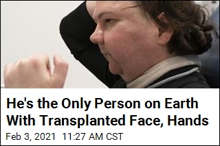 A Face, Hands Transplant May Succeed for First Time Ever