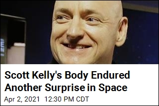 Scott Kelly's Body Endured Another Surprise in Space