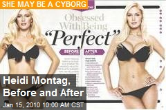 Heidi Montag, Before and After