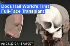 Docs Hail World's First Full-Face Transplant